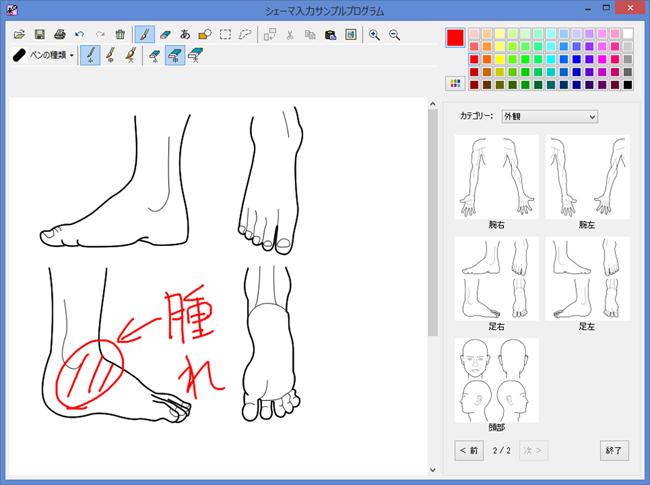 人体図(シェーマ)入力サンプル画面